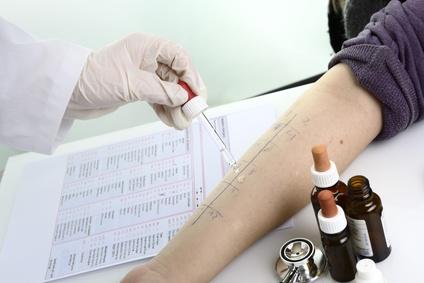 Arzt tropft Allergietest Pricktest auf Unterarm