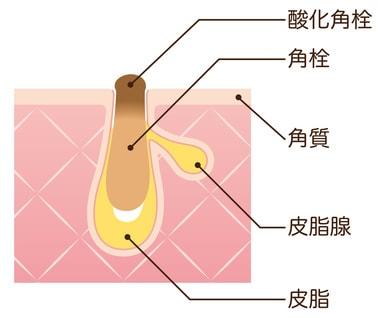 角栓 毛穴